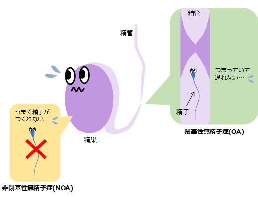 非閉塞性無精子症(Non-Obstructive Azoospermia; NOA)