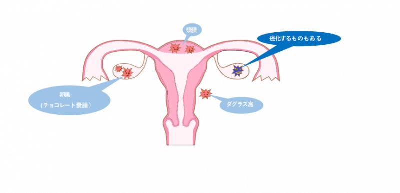 子宮内膜症(チョコレート嚢腫)