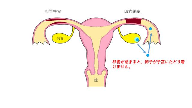 卵管狭窄と卵管閉塞